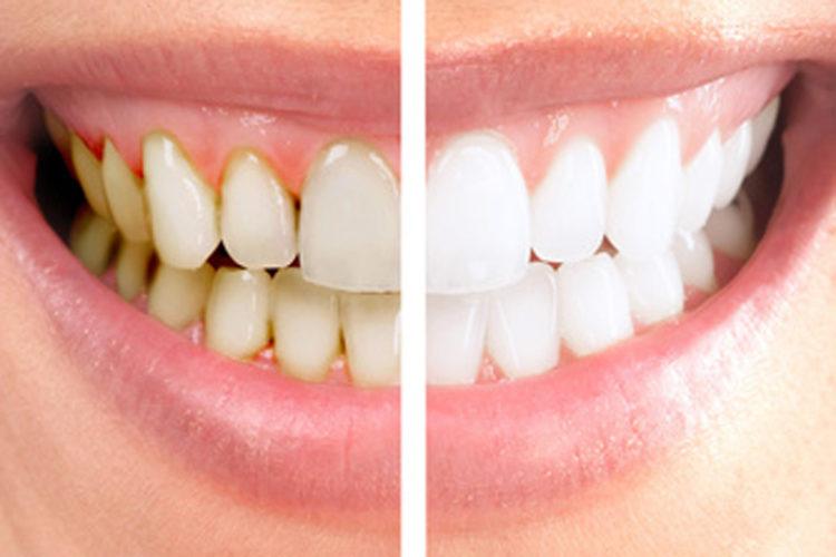 Blanqueamiento dientes con láser clínica dental Sevilleja en Talavera