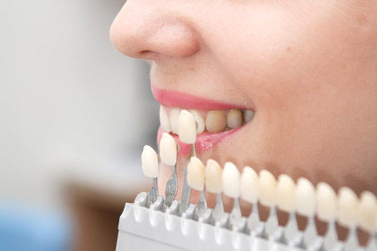 Carillas dentales de porcelana en Talavera Clínica dental Sevilleja