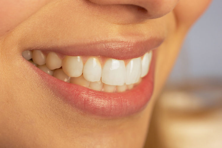 Periondoncia dental en Talavera en Clínica dental Sevilleja