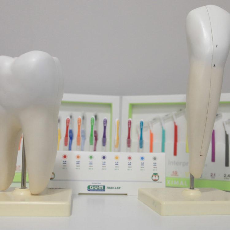 Higiene dental Clínica dental Sevilleja en Talavera