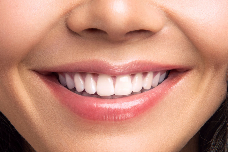 Blanqueamiento en Talavera Clínica Dental Sevilleja